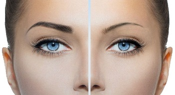 Brow & Lash Enhancements